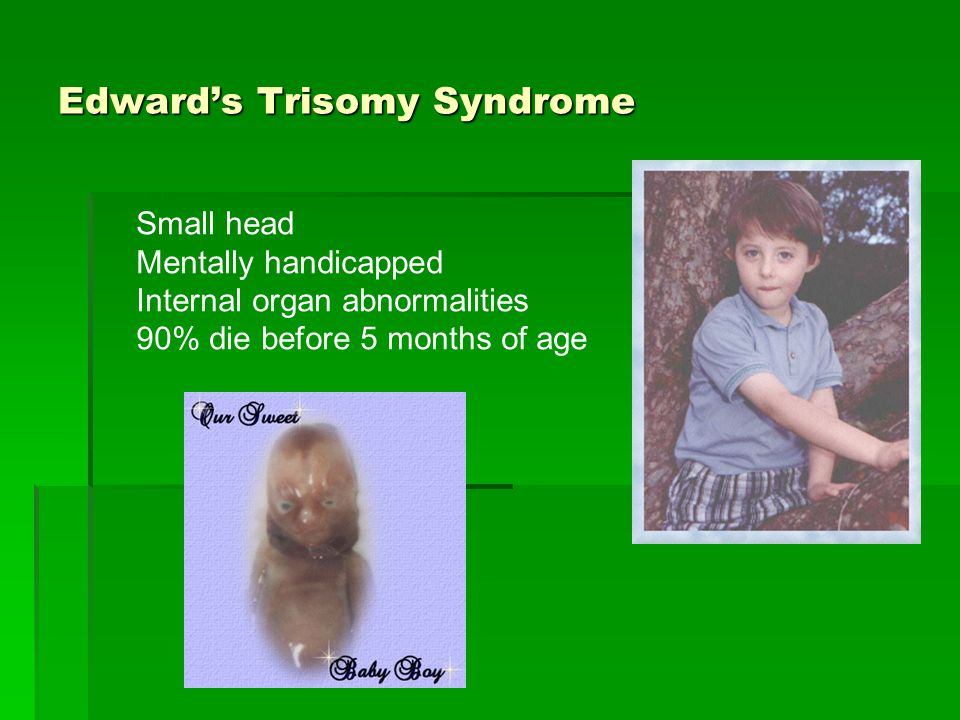 Edward's Trisomy Syndrome