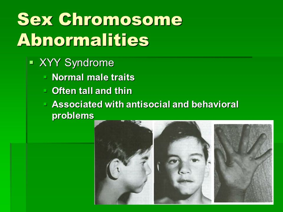 Sex Chromosome Abnormalities