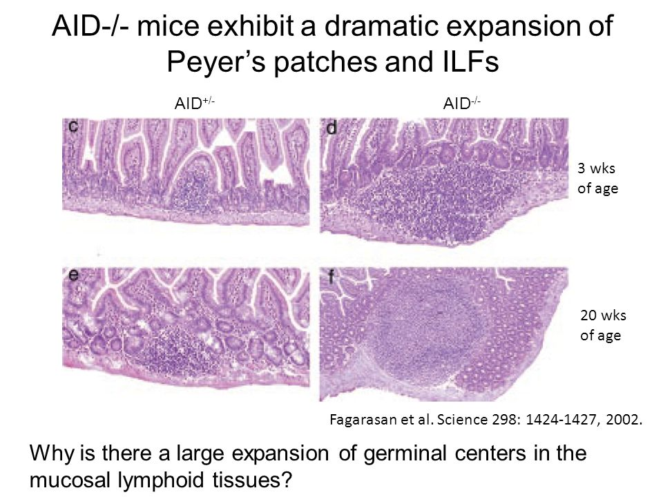 AID-/- mice exhibit a dramatic expansion of Peyer's patches and ILFs