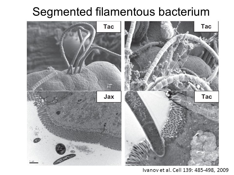 Segmented filamentous bacterium