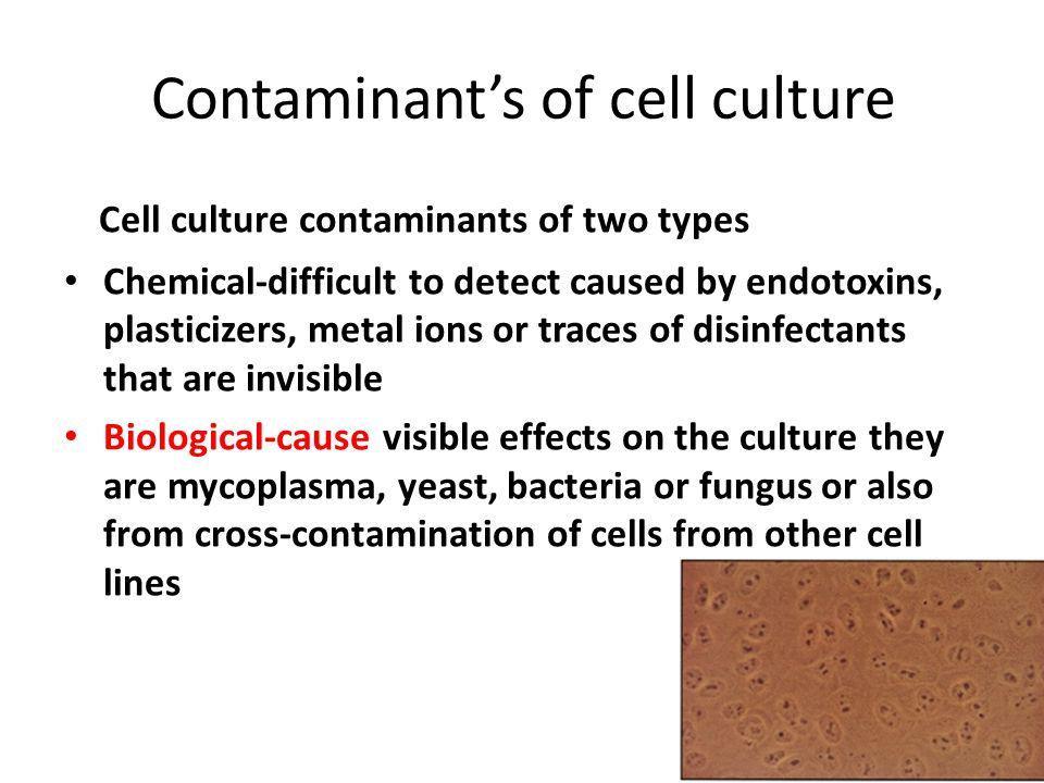 Contaminant's of cell culture
