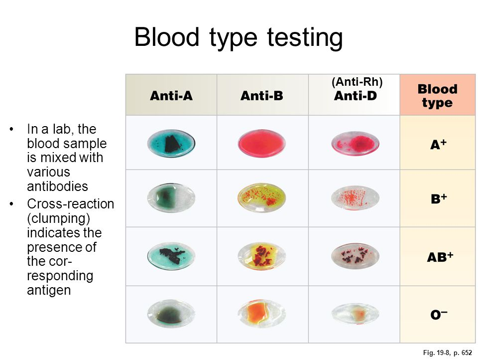 Blood type testing (Anti-Rh) In a lab, the blood sample is mixed with various antibodies.
