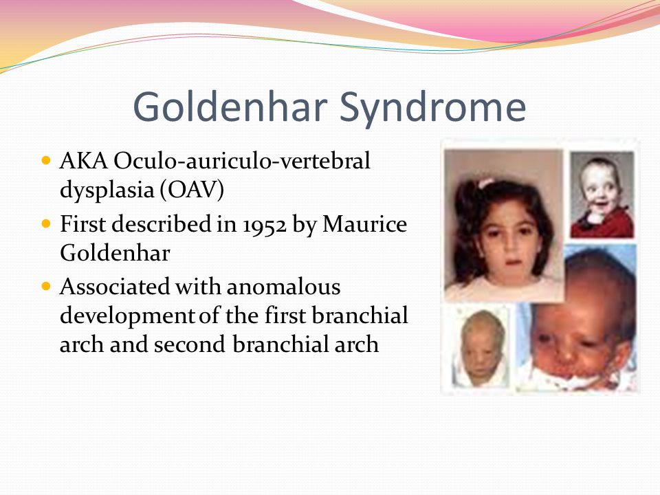 goldenhar syndrome presented by lori kingsbury & jennifer klundt, Skeleton