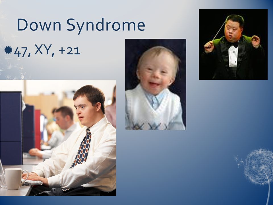 Down Syndrome 47, XY, +21