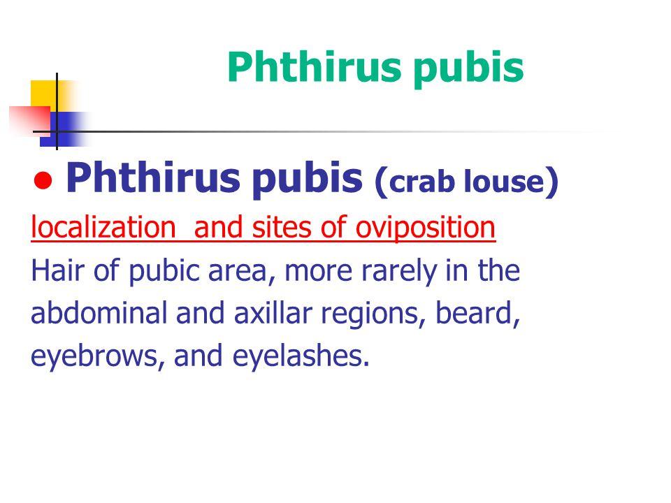 ● Phthirus pubis (crab louse)