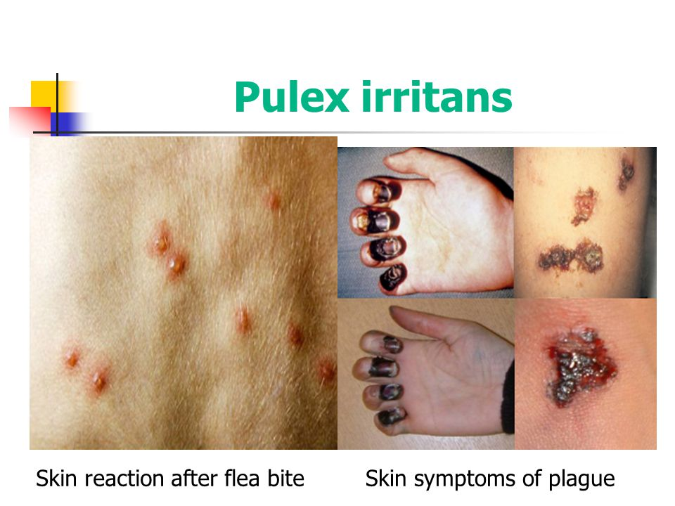 Pulex irritans symptoms of plague Skin reaction after flea bite