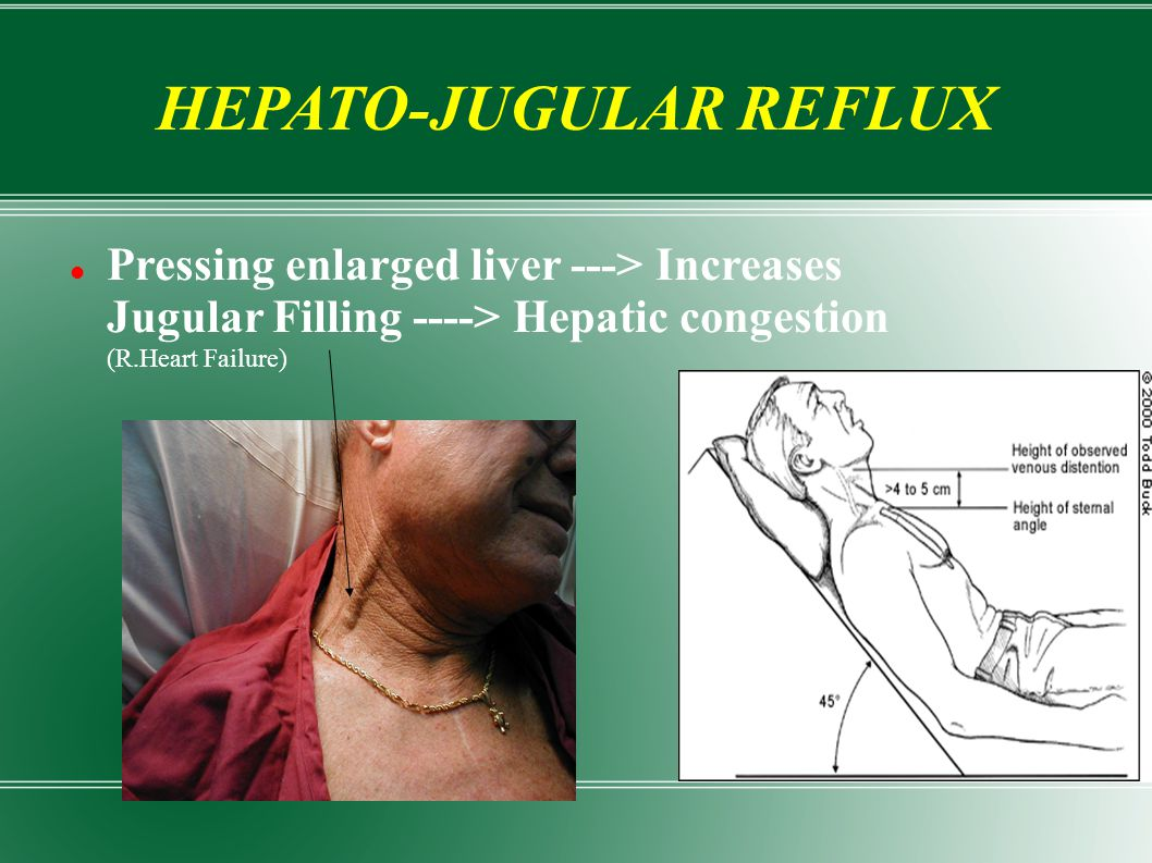 HEPATO-JUGULAR REFLUX