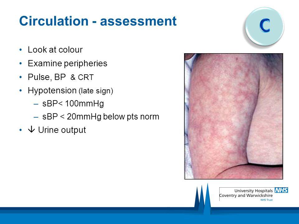 Circulation - assessment