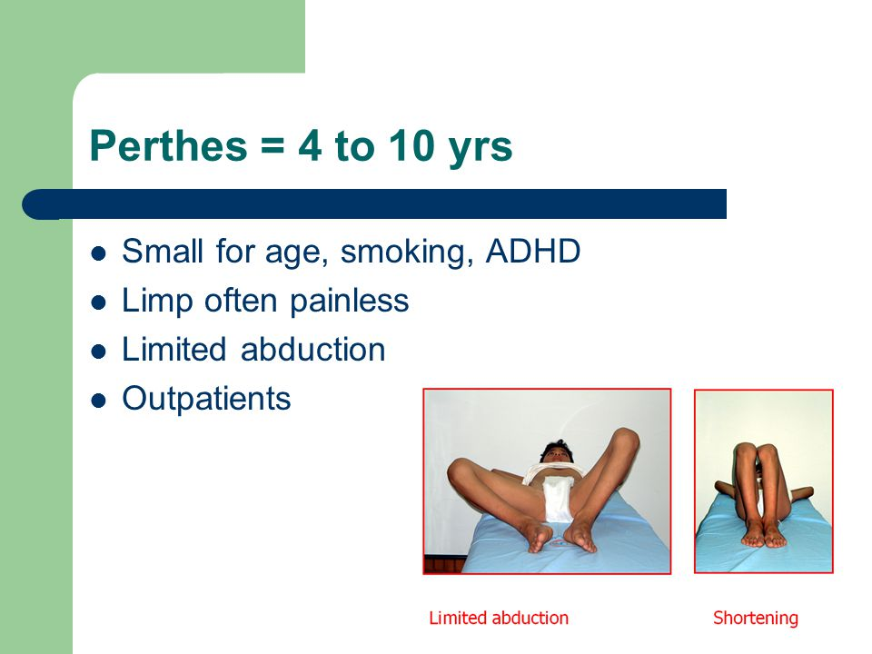 Perthes = 4 to 10 yrs Small for age, smoking, ADHD Limp often painless