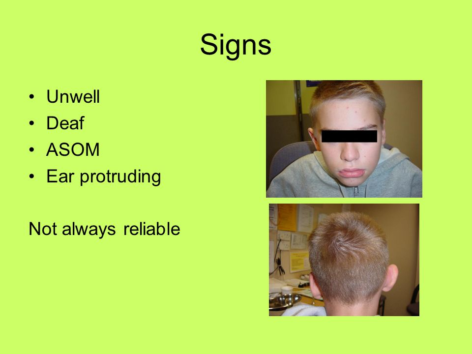 Signs Unwell Deaf ASOM Ear protruding Not always reliable