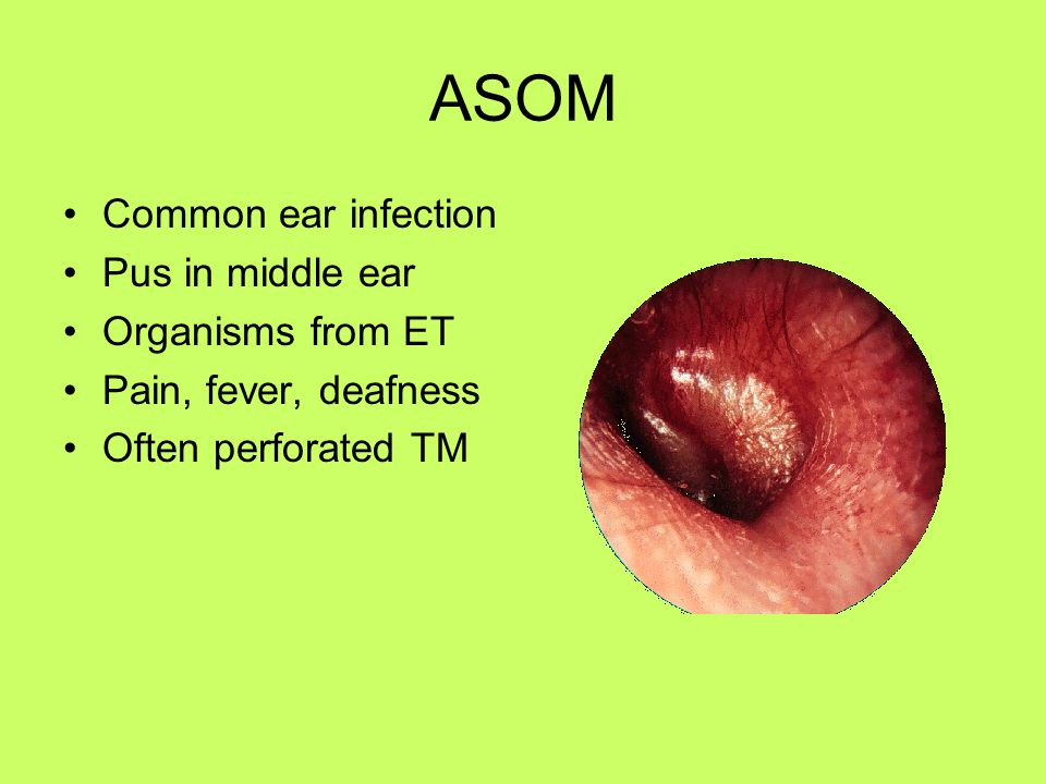 ASOM Common ear infection Pus in middle ear Organisms from ET