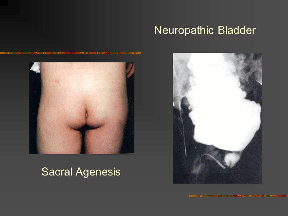 Neuropathic Bladder Sacral Agenesis