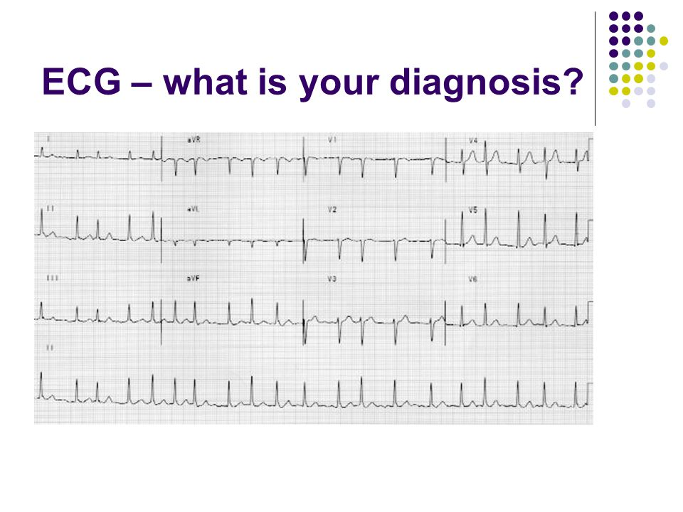 ECG – what is your diagnosis