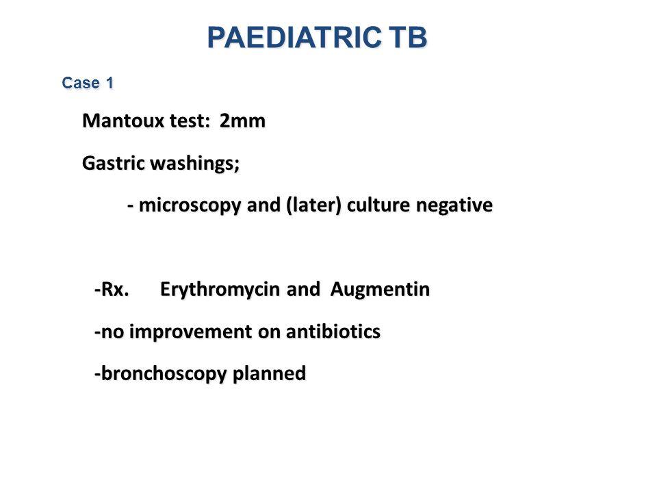 PAEDIATRIC TB Gastric washings;