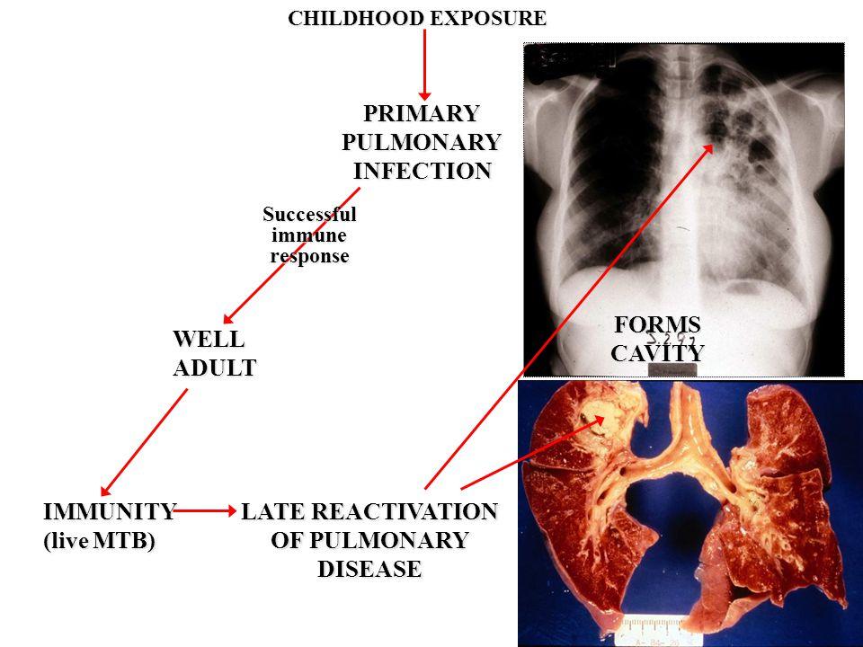 LATE REACTIVATION OF PULMONARY DISEASE