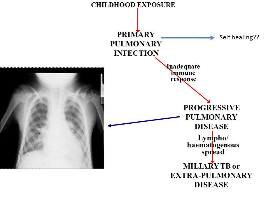 PRIMARY PULMONARY INFECTION PROGRESSIVE DISEASE Lympho/ haematogenous