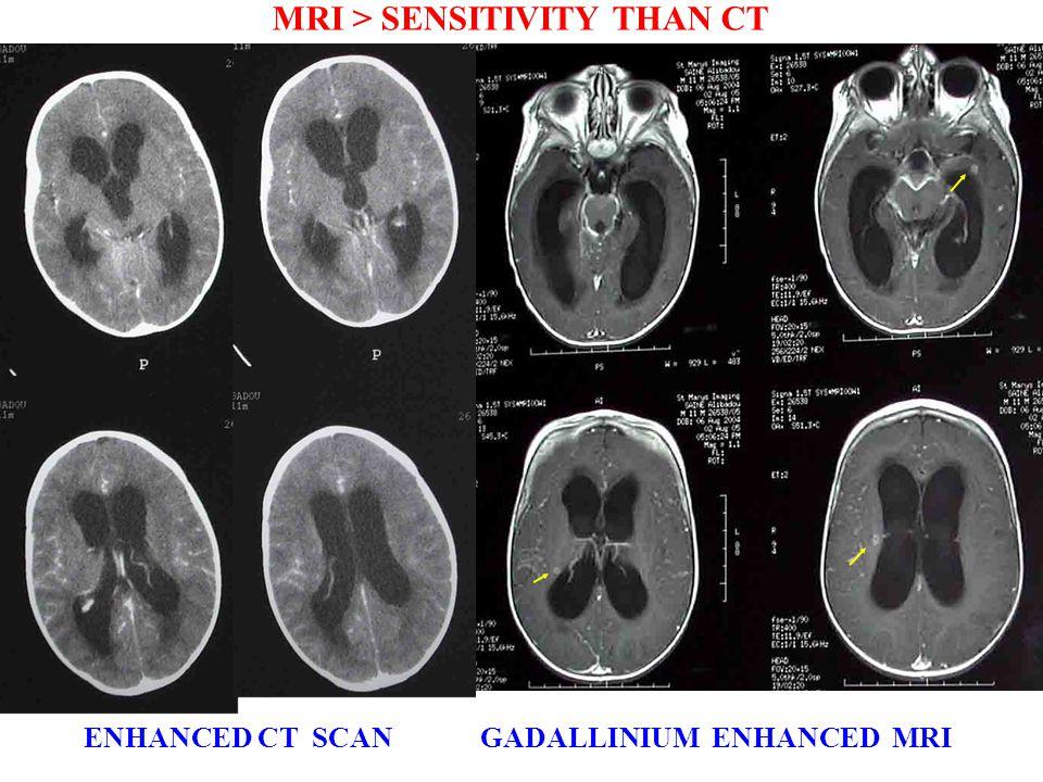 MRI > SENSITIVITY THAN CT