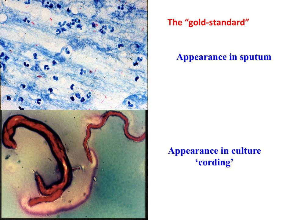 The gold-standard Appearance in sputum Appearance in culture 'cording'