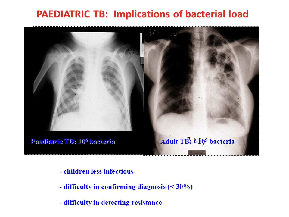 PAEDIATRIC TB: Implications of bacterial load