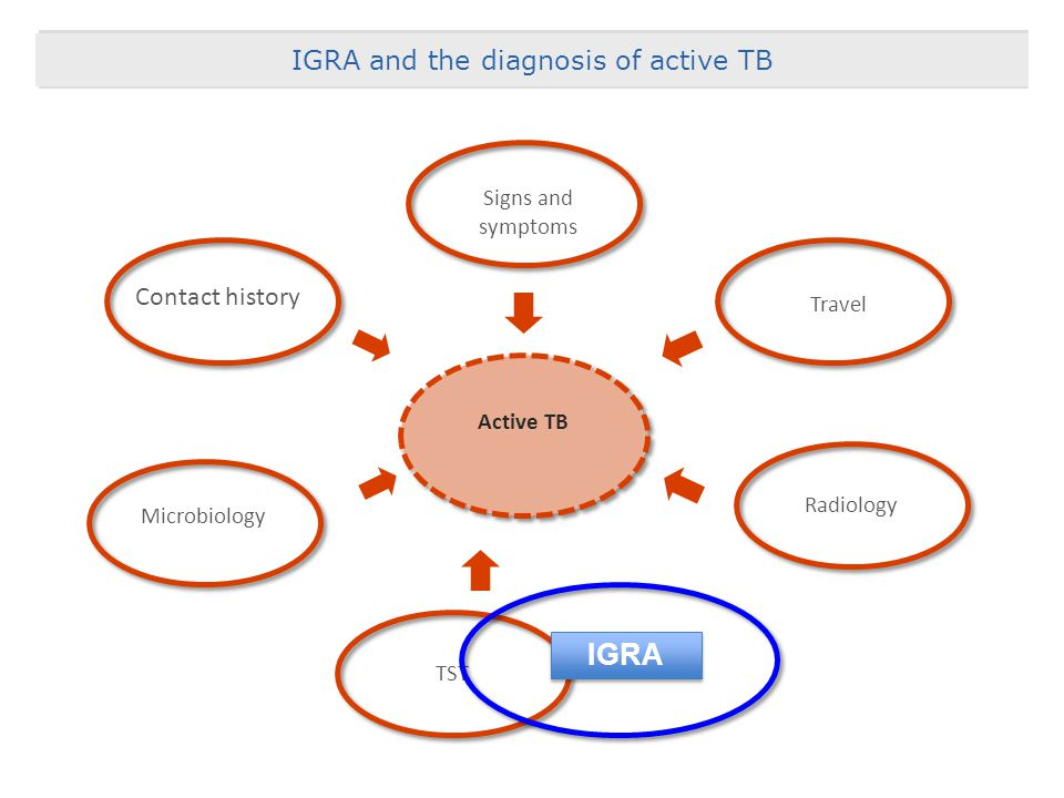 IGRA Acknowledgement & Thanks IGRA and the diagnosis of active TB