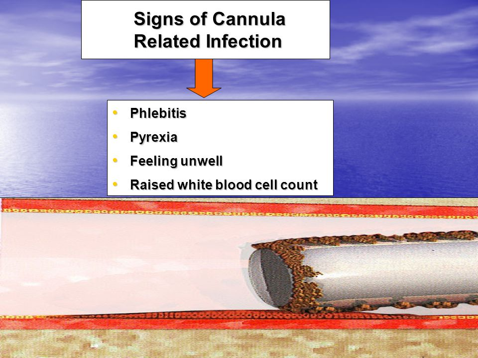 Signs of Cannula Related Infection