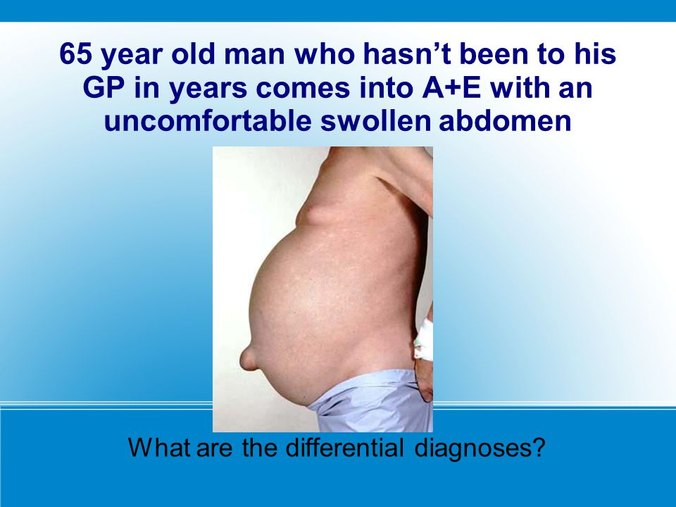 What are the differential diagnoses