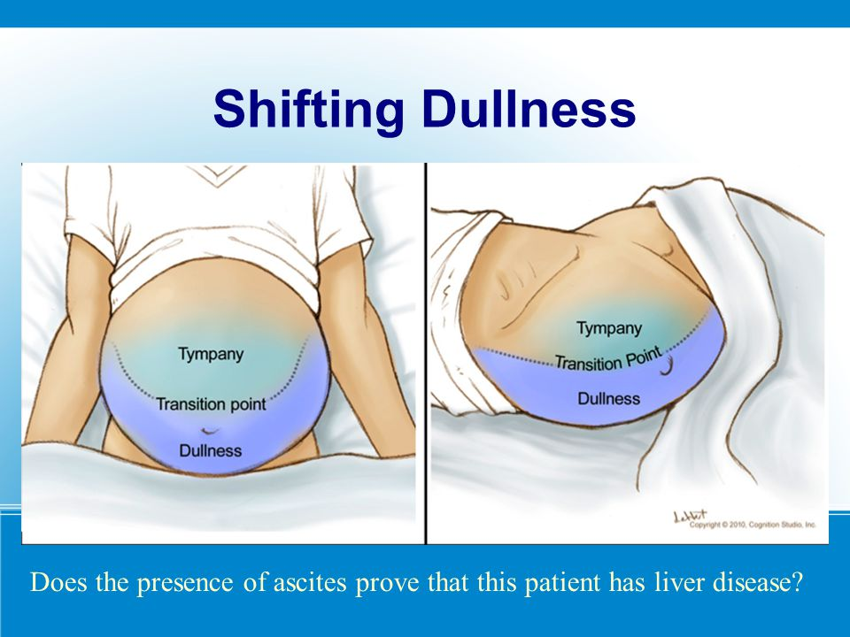 Shifting Dullness Does the presence of ascites prove that this patient has liver disease