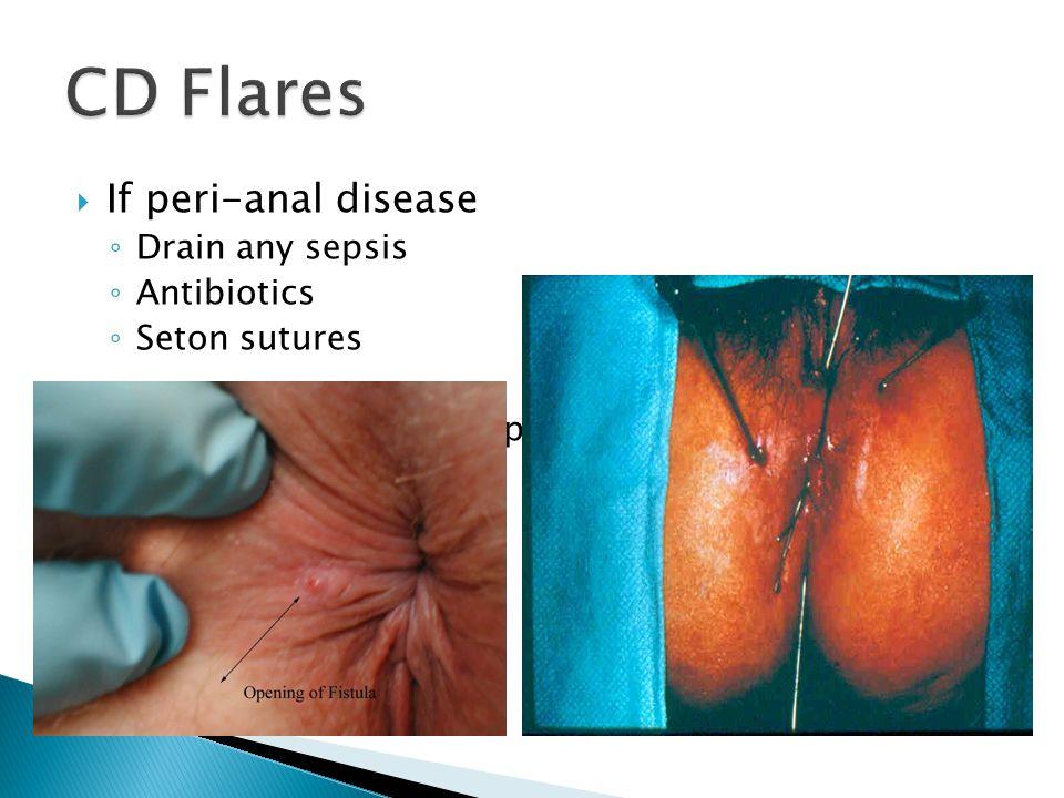 CD Flares If peri-anal disease Drain any sepsis Antibiotics