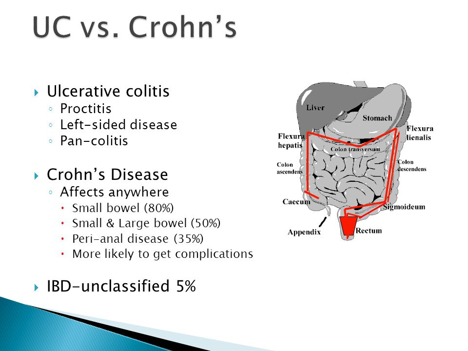 UC vs. Crohn's Ulcerative colitis Crohn's Disease IBD-unclassified 5%
