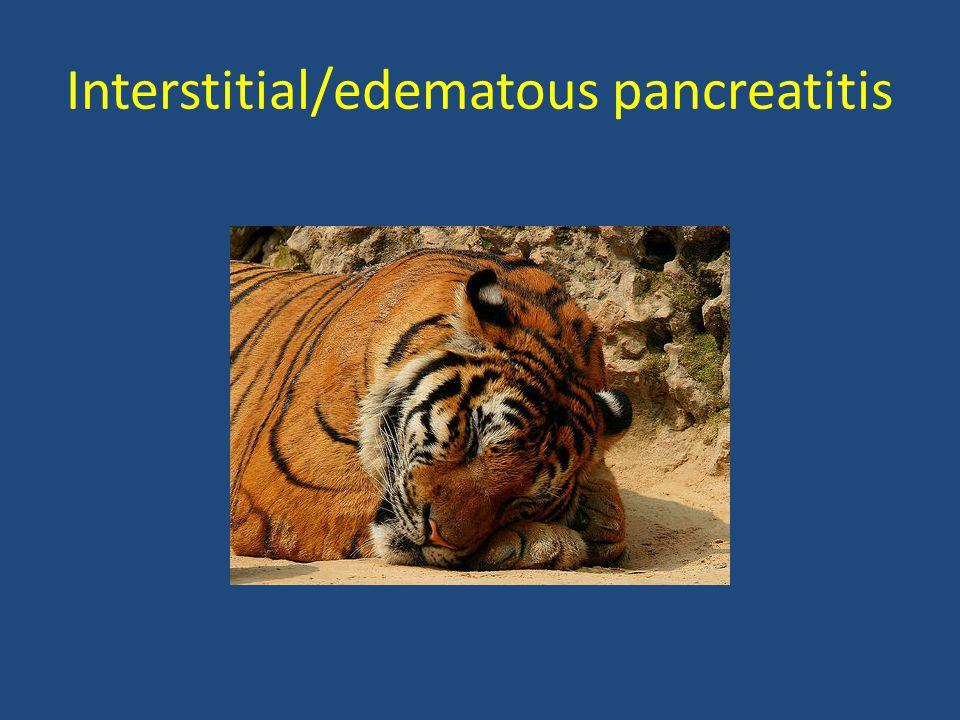 Interstitial/edematous pancreatitis