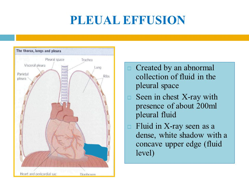 PLEUAL EFFUSION Created by an abnormal collection of fluid in the pleural space. Seen in chest X-ray with presence of about 200ml pleural fluid.
