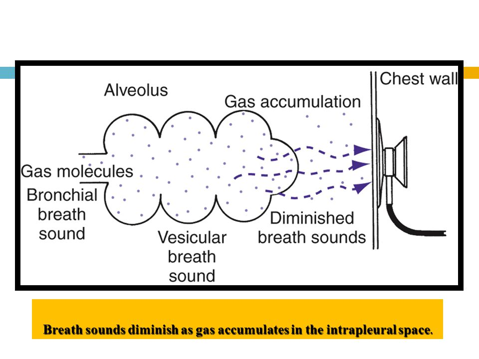 Breath sounds diminish as gas accumulates in the intrapleural space.