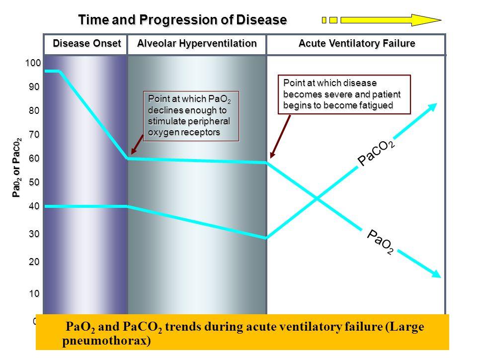 Alveolar Hyperventilation Acute Ventilatory Failure