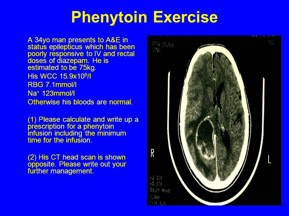 Phenytoin Exercise