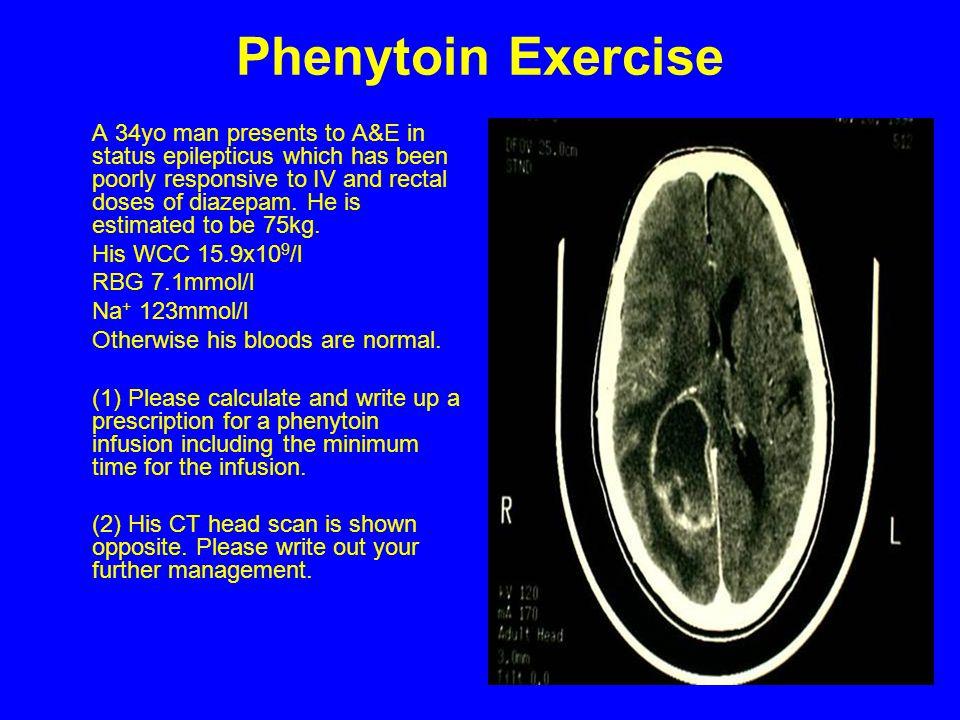 Phenytoin Exercise