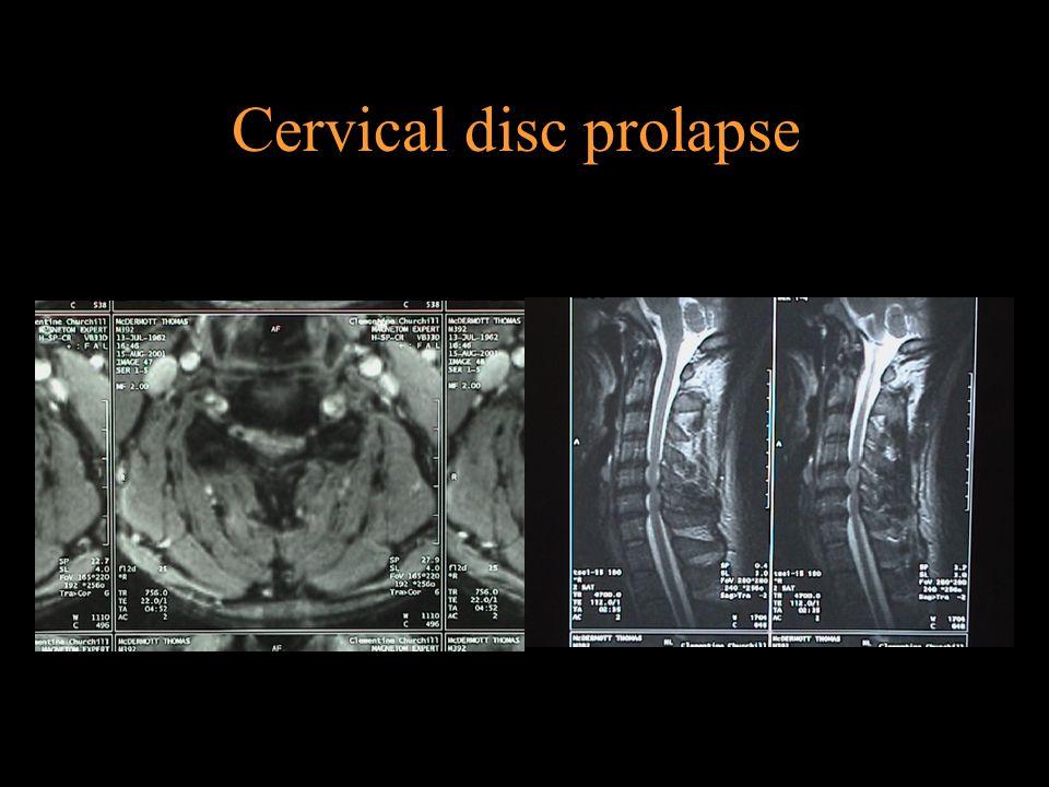 Cervical disc prolapse