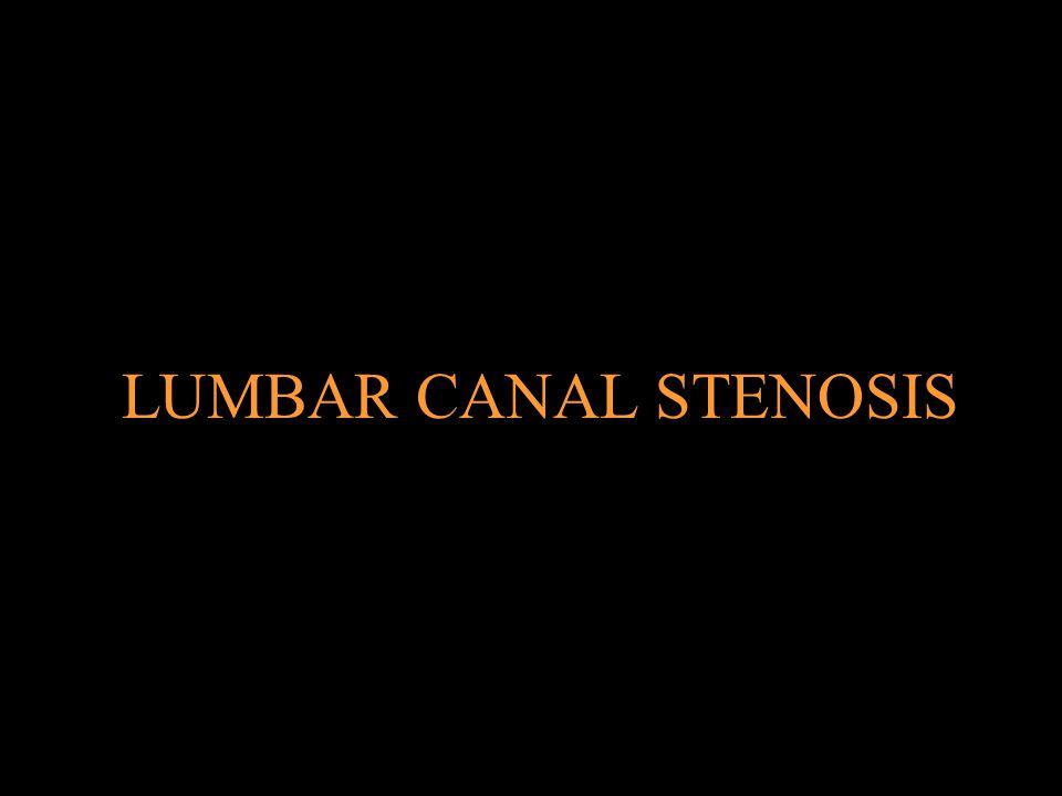 LUMBAR CANAL STENOSIS