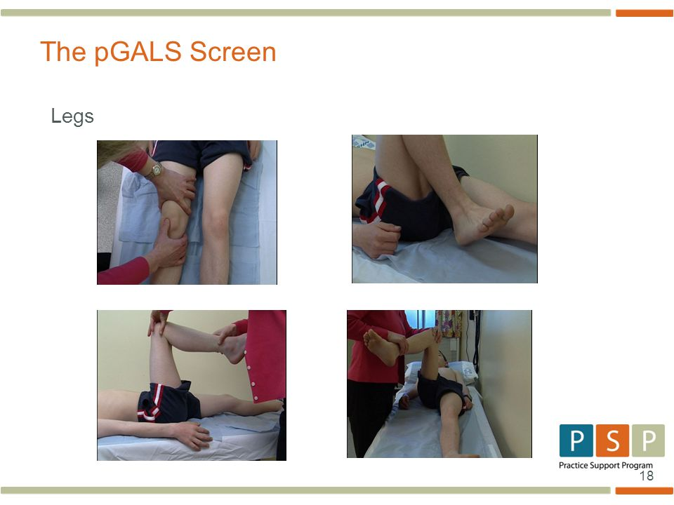 The pGALS Screen Legs