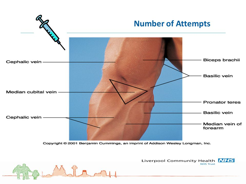 Number of Attempts People look for the best veins, Think palpation over visual. Stop and practice on each other.