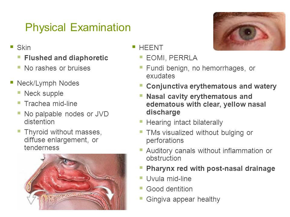 Physical Examination Skin Flushed and diaphoretic No rashes or bruises