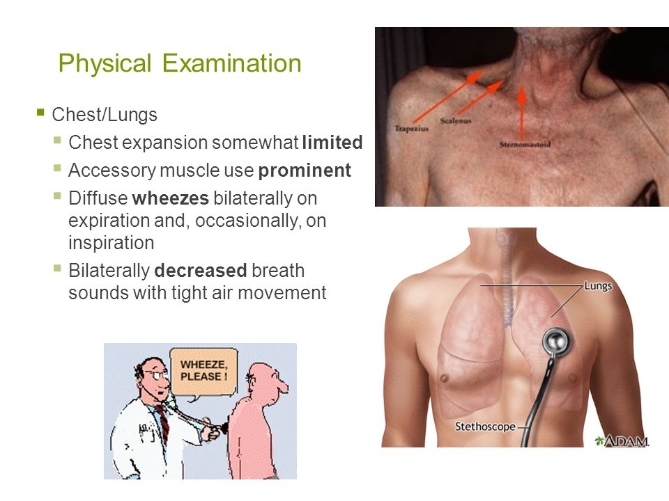 Physical Examination Chest/Lungs Chest expansion somewhat limited