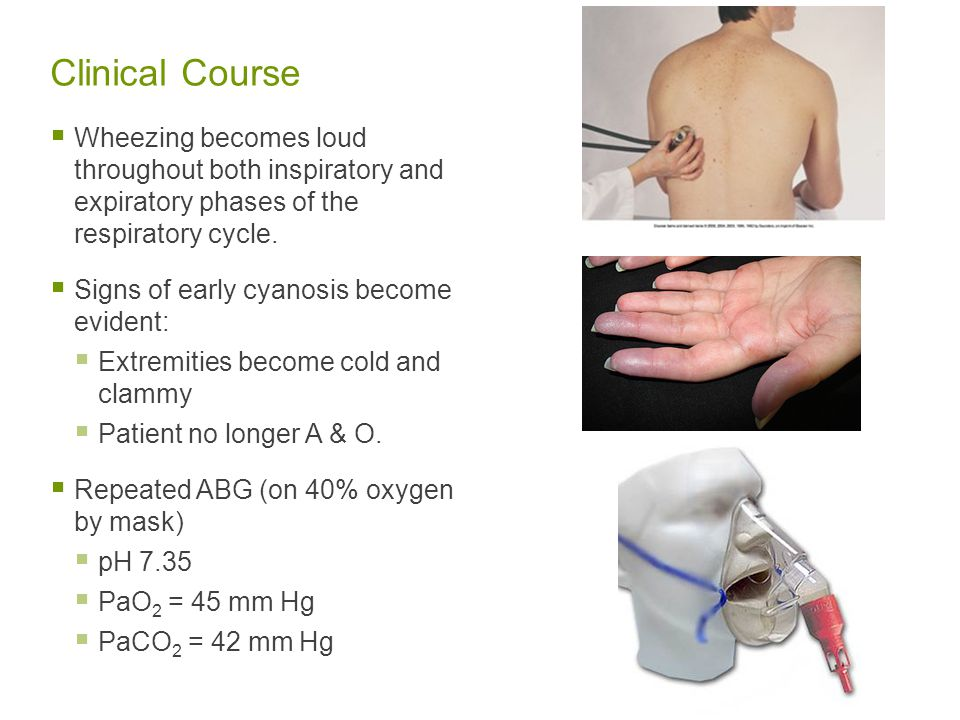 Clinical Course Wheezing becomes loud throughout both inspiratory and expiratory phases of the respiratory cycle.