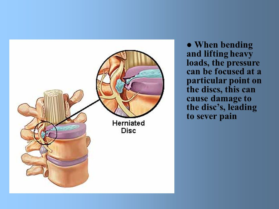 When bending and lifting heavy loads, the pressure can be focused at a particular point on the discs, this can cause damage to the disc's, leading to sever pain