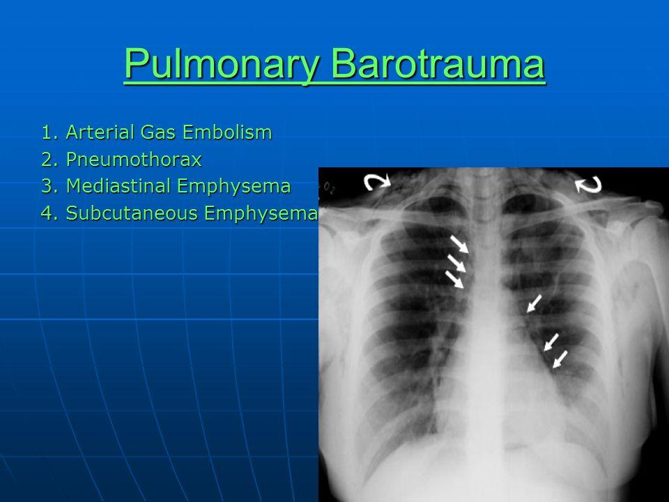 Pulmonary Barotrauma 1. Arterial Gas Embolism 2. Pneumothorax