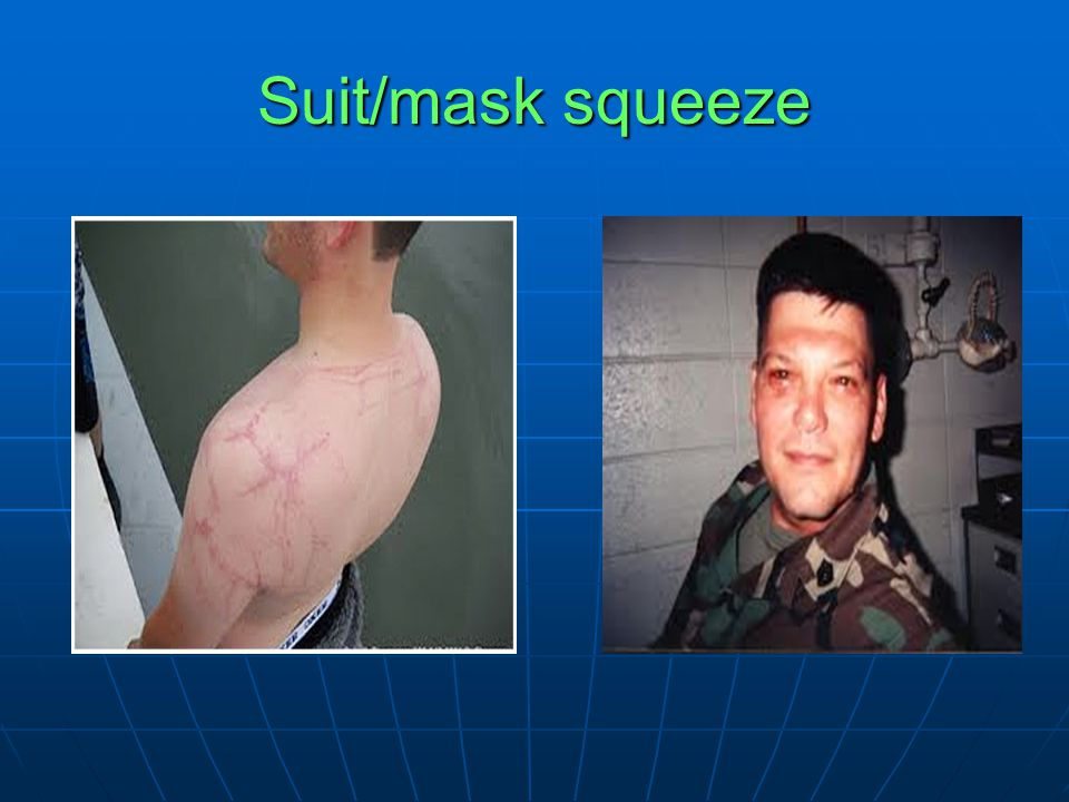 Suit/mask squeeze
