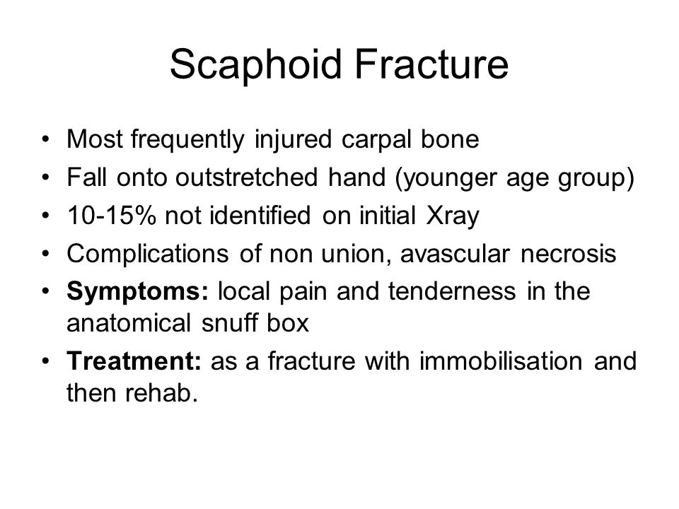 Scaphoid Fracture Most frequently injured carpal bone