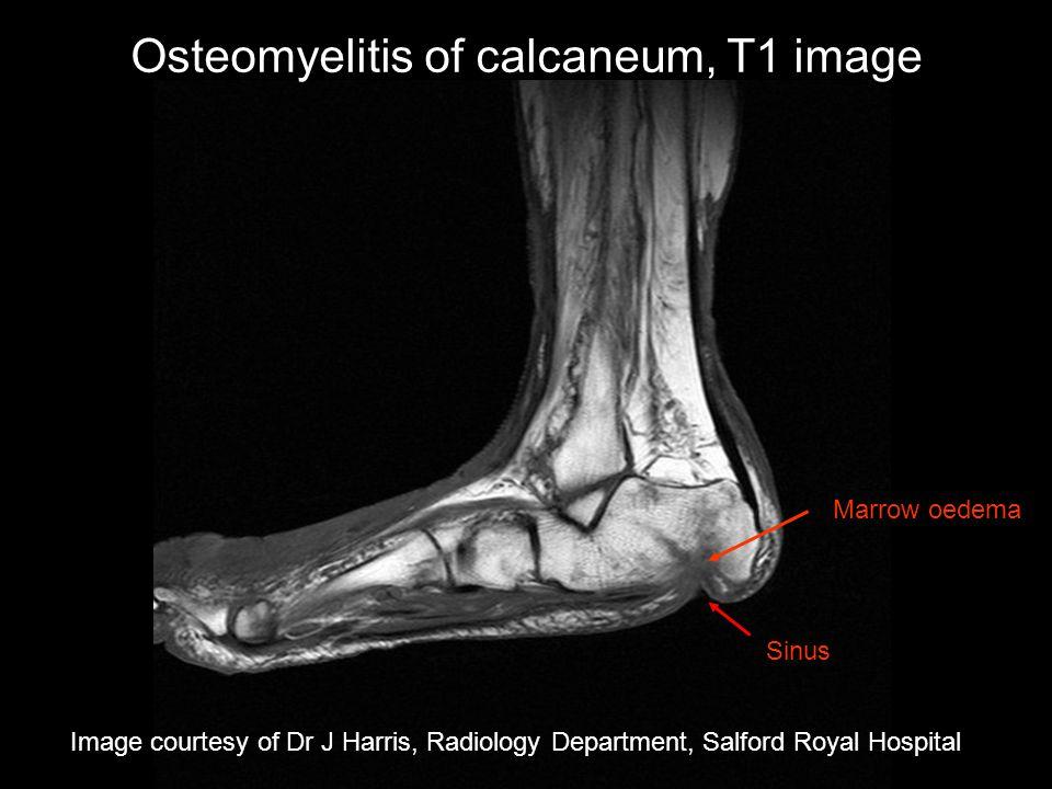 Osteomyelitis of calcaneum, T1 image
