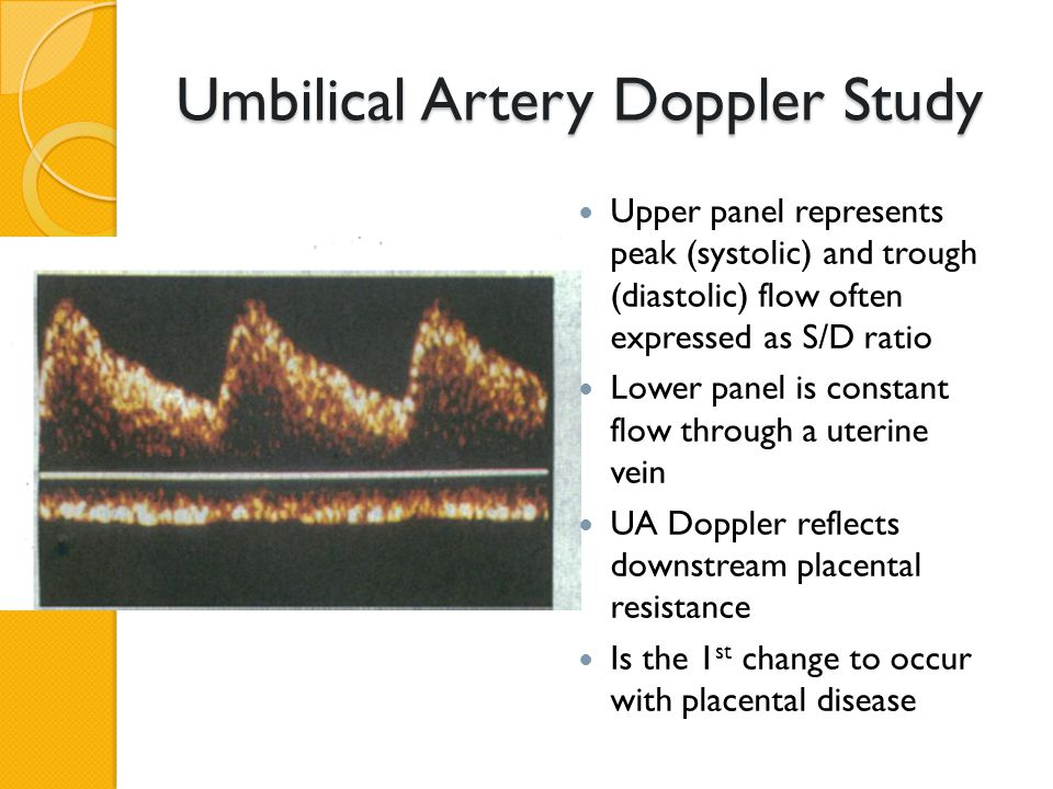Umbilical Artery Doppler Study