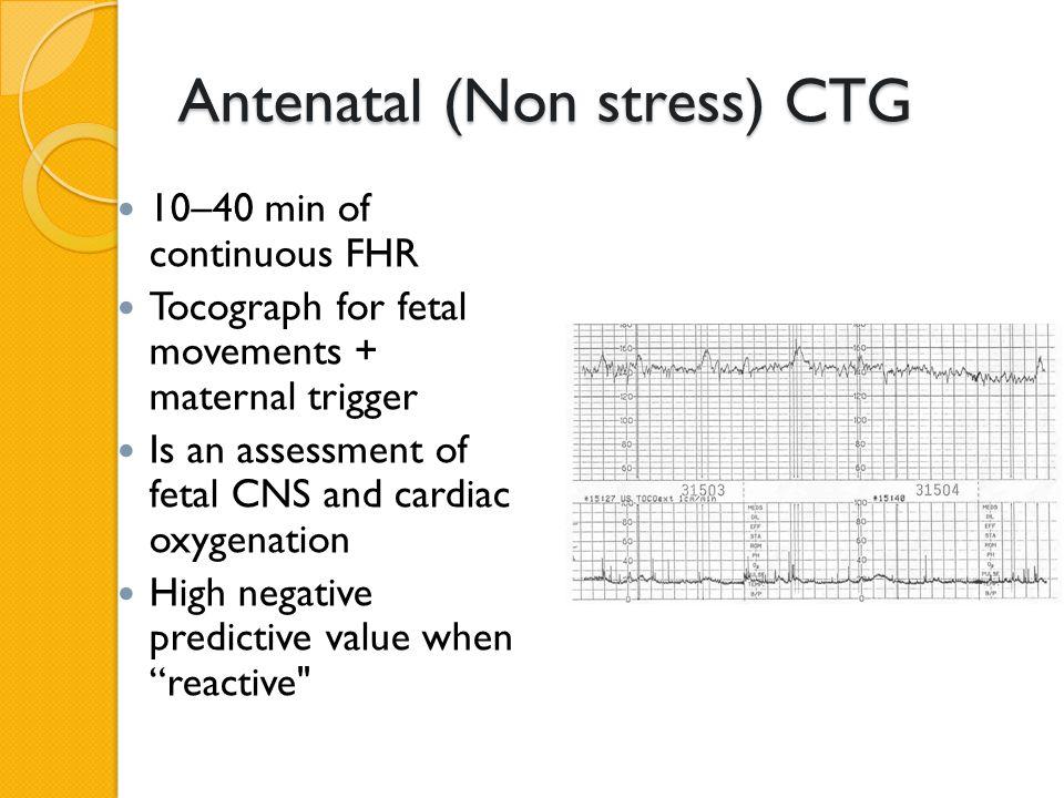 Antenatal (Non stress) CTG