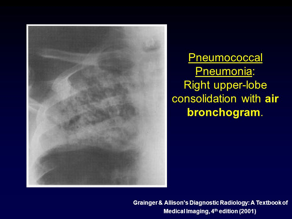 Pneumococcal Pneumonia: Right upper-lobe consolidation with air bronchogram.